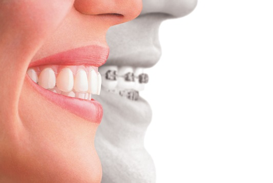 FAQ's about orthodontic treatment