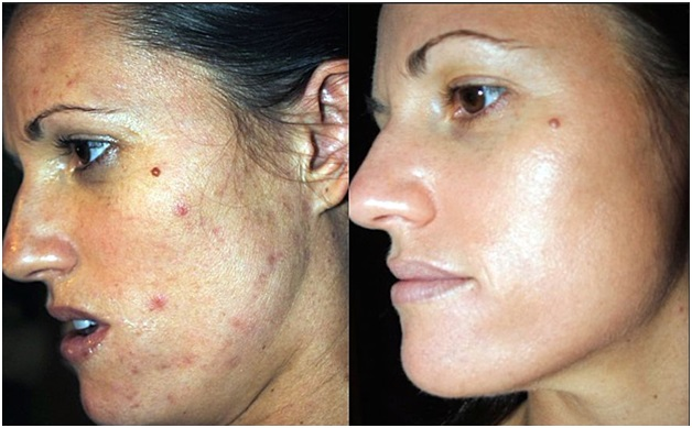 Wrinkles and Spots: How to Treat Midlife Acne