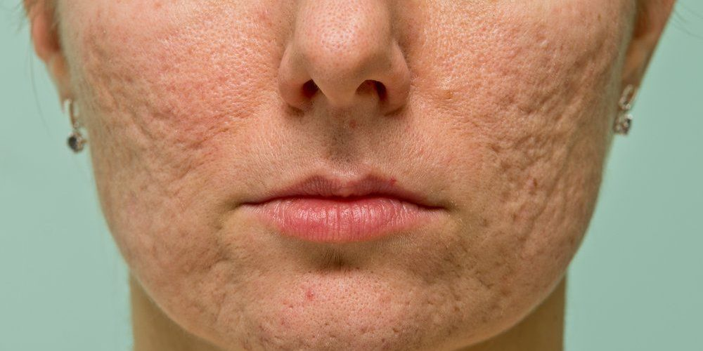 What Are the Common Myths About Acne?