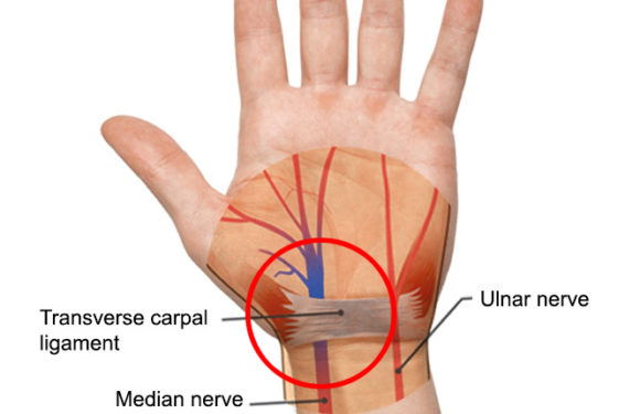 Risks of Carpal Tunnel Syndrome