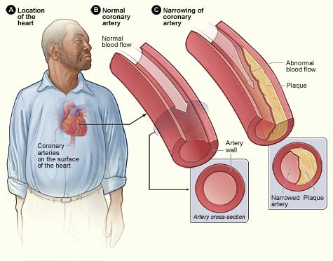 What Everyone Ought to Know About Peripheral Artery Disease