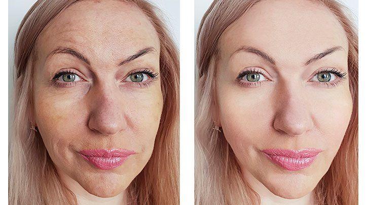 Peach Medical Group Skin & Scar Resurfacing Treatment