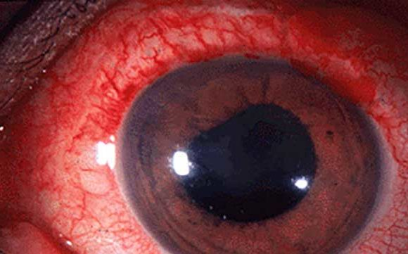 Least known Causes of Red Eye and Its Treatment
