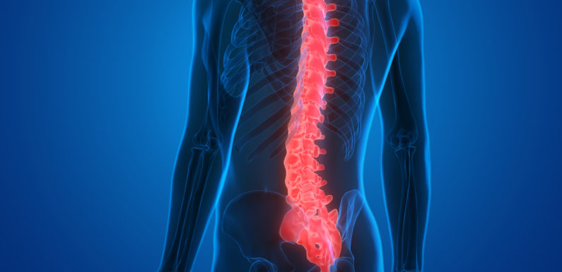 Spinal Cord Stimulation: What You Need to Know