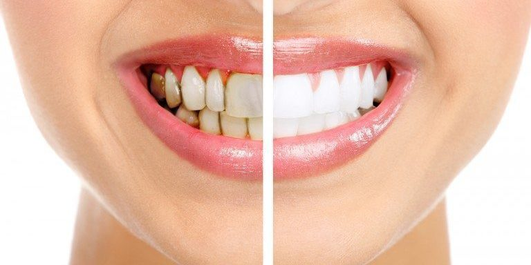 Who Is a Good Candidate for Veneers?