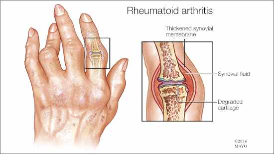 Rheumatoid Arthritis: Causes, Symptoms, and Treatment