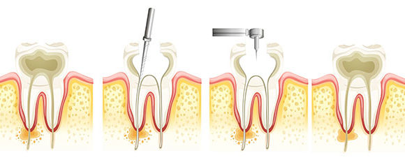 A Closer Look at Root Canal Therapy