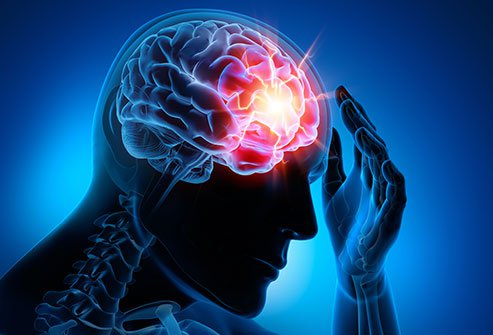 What Causes Concussion and How to Treat