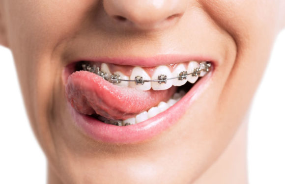 Freedom Orthodontics, Let Your Smile Set You Free
