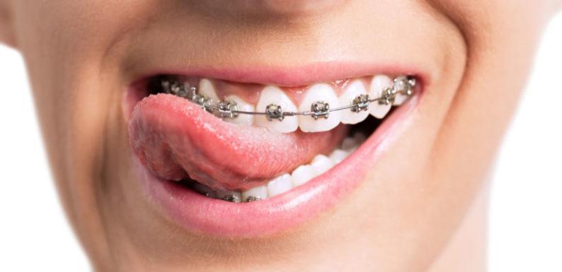 Freedom Orthodontics, Let Your Smile Set You Free
