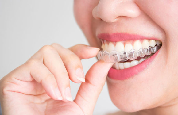 Tips for Choosing an Invisalign Specialist