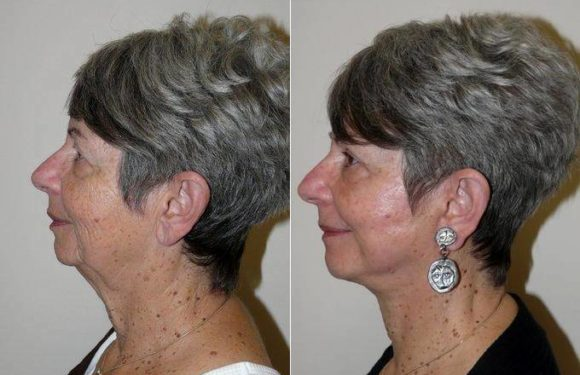 Turn Back Time with a Face Lift