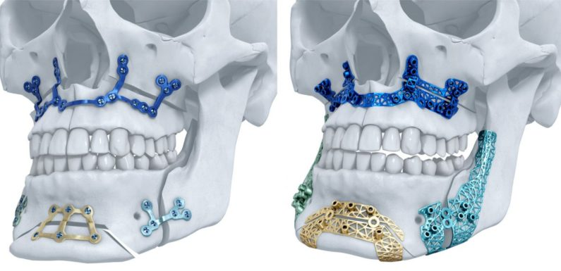 Going for Maxillofacial & Implant Surgery: Is It Worth It?