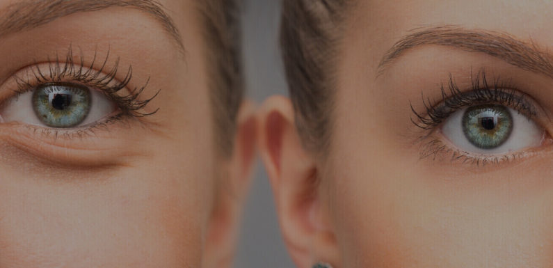 What You Need to Know About Eyelid Surgery