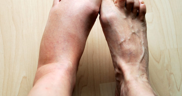 Swollen Legs- Common Causes and Symptoms