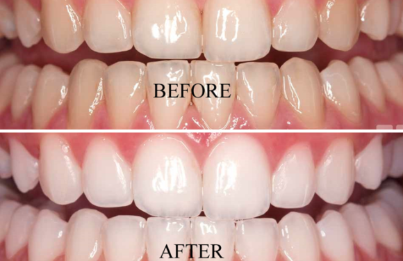 Dangers of DIY Teeth Whitening
