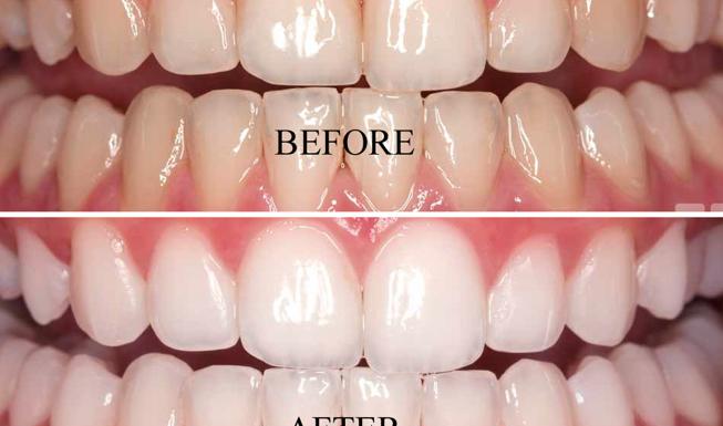 Dangers of DIY Teeth Whitening