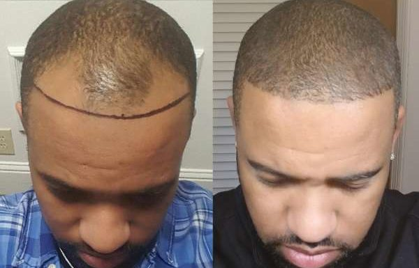 The Benefits of Hair Restoration