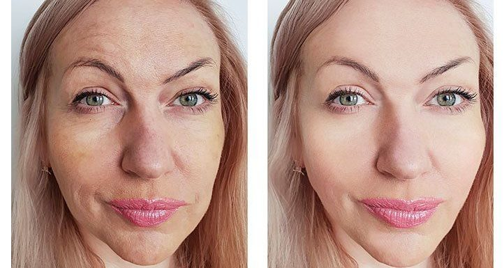 A Closer Look at Laser Resurfacing