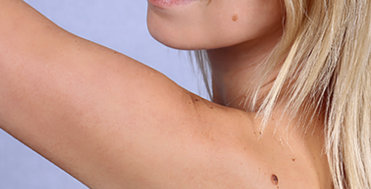 Top-Quality Extensive Care for Skin Cancer