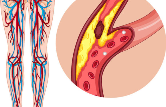 What You Ought to Know About Peripheral Vascular Disease