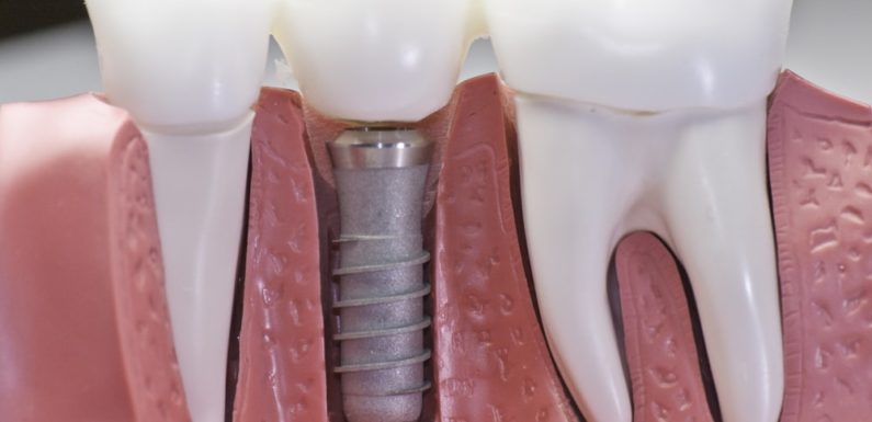 Why You Should Go for Dental Implants