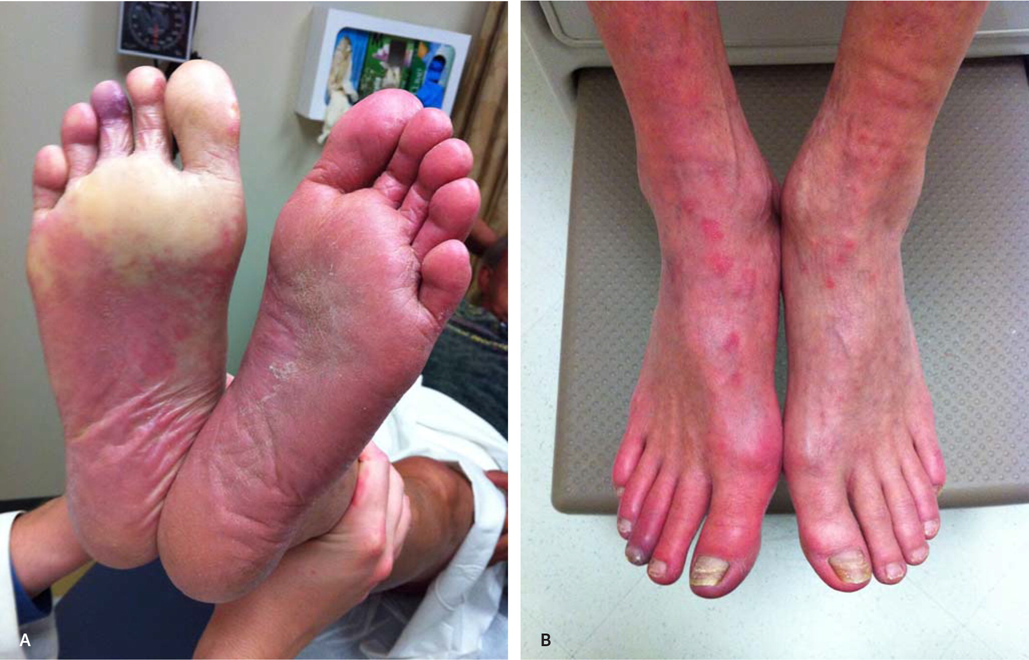 How to Deal With Peripheral Arterial Disease