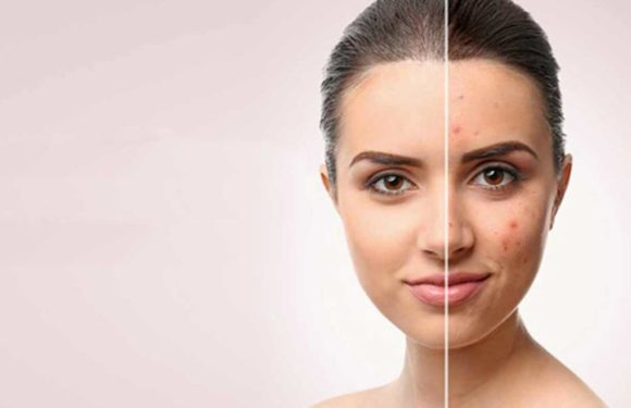 Skin and Scar Resurfacing in Montclair Rejuvenation Center