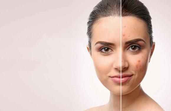 Skin and Scar Resurfacing in Montclair Rejuvenation Center