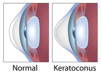 Safe and Effective Keratoconus Treatment with INTACS Specialist in New Jersey