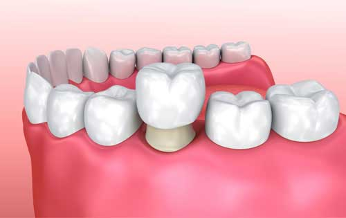 What is a dental crown? Find all details here!