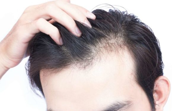 7 Possible Causes of Hair Thinning