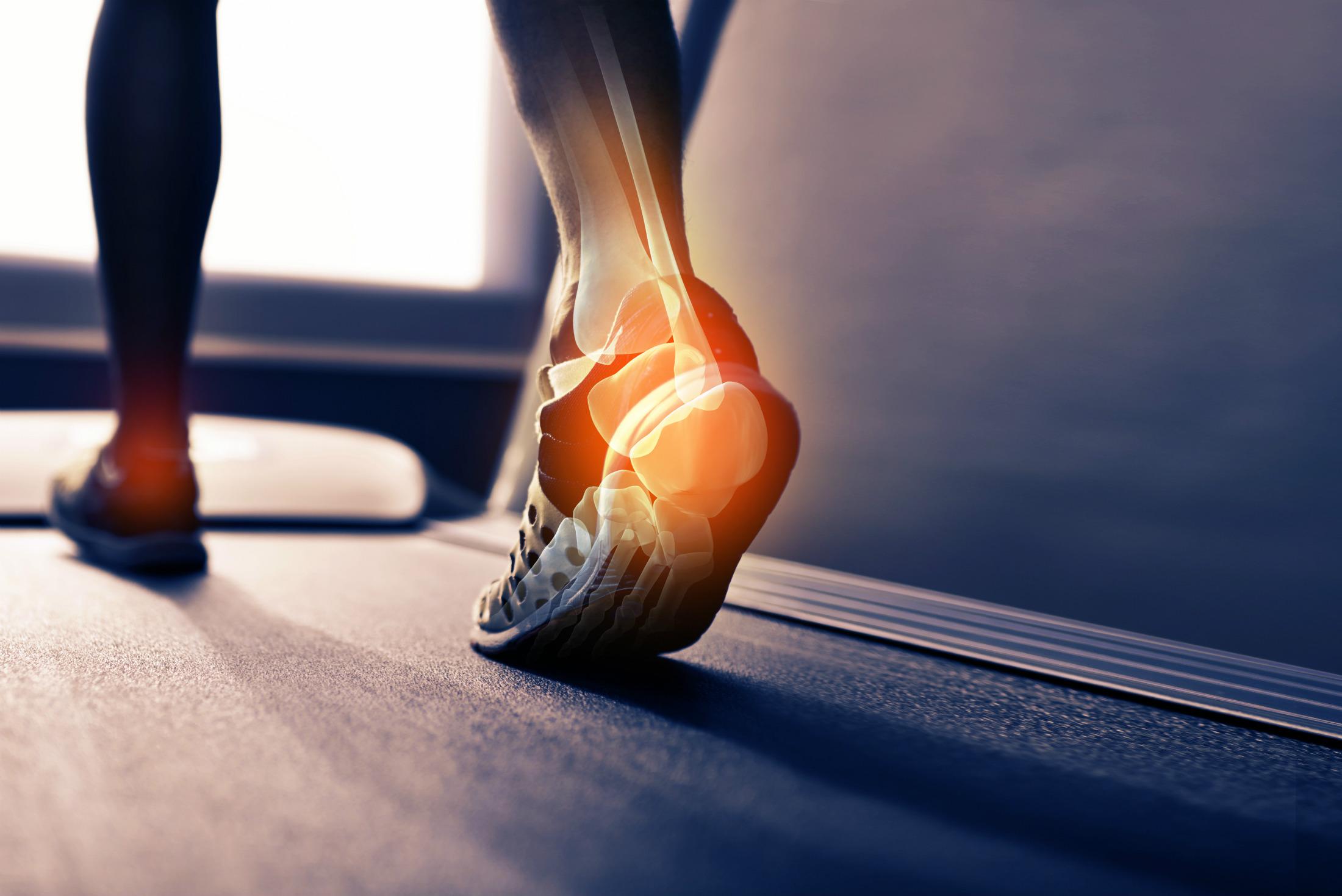 Effective Heel Pain Treatment in New York