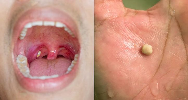 5 Signs You Need to See a Tonsils Specialist