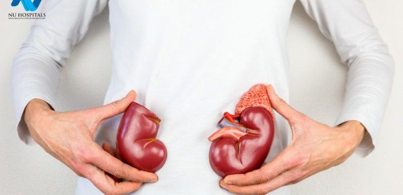 What You Should Know About Kidney Transplants
