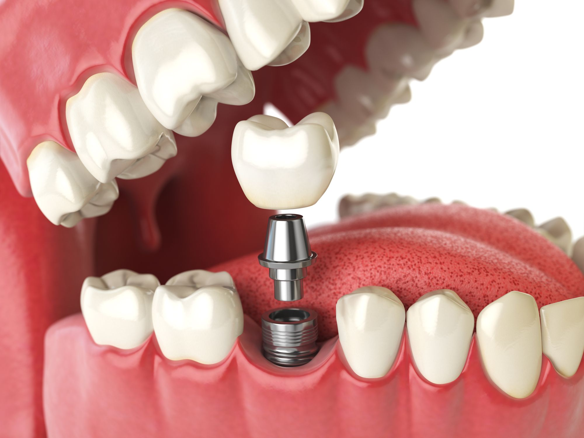 6 Tips for Taking Care of Your Dental Implants