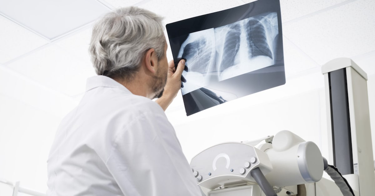 Professional X-Ray Services for Medical Diagnosis in Austin