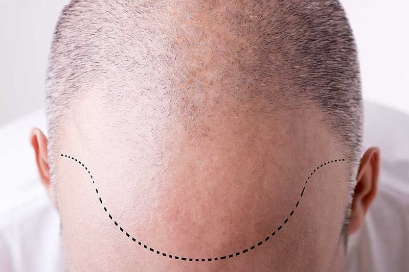 7 Factors You Must Consider When Deciding on Hair Restoration