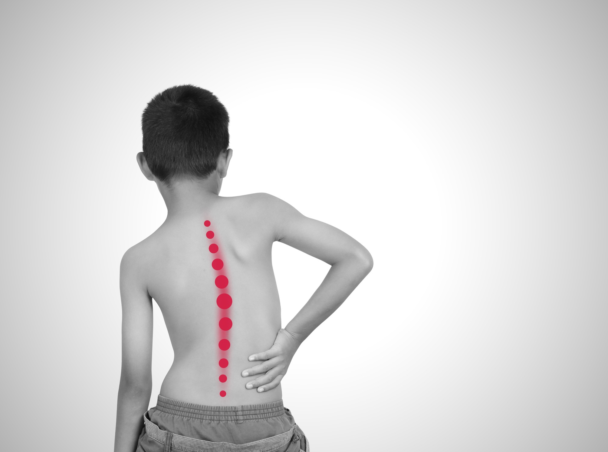Scoliosis. Here is What You Need to Know
