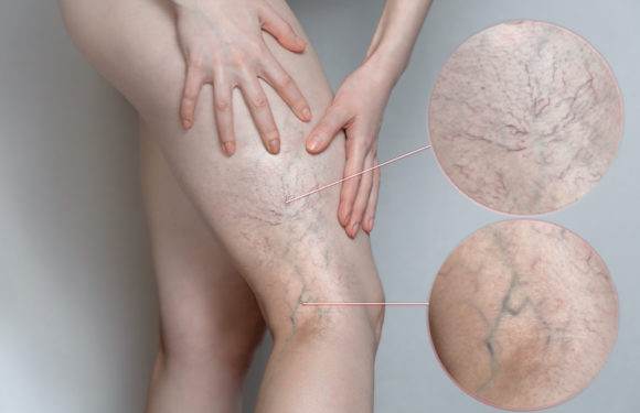 How to Get Rid of Spider and Varicose Veins