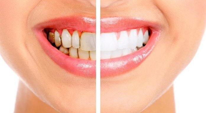 Teeth Whitening: What Are The Available Procedures