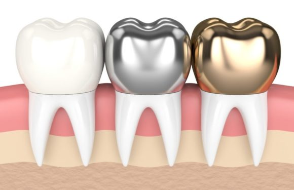 Five Great Benefits of Dental Crowns