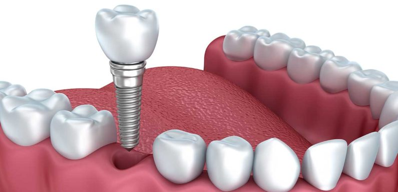 What You Should Know About Dental Implants