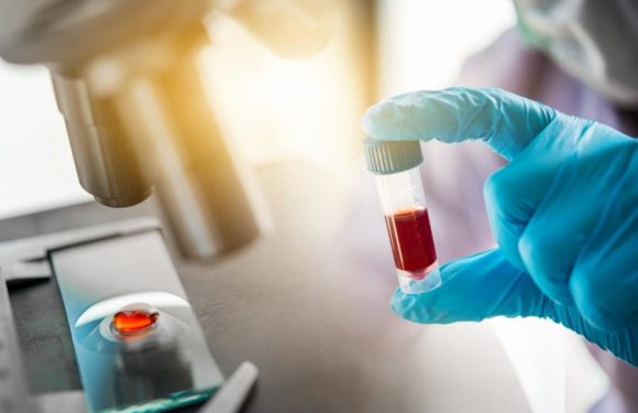 Unknown Facts about Antibody Testing
