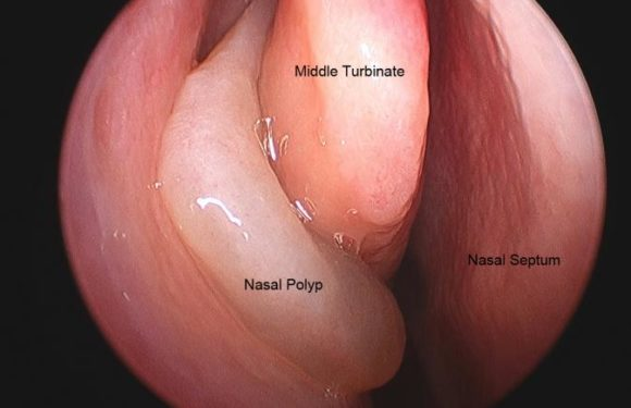 Nasal Polyps Giving You a Hard Time? How to Break Free From the Condition