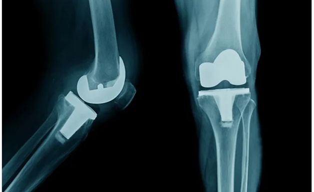 Knee Replacement Surgery In Bhubaneswar- All You Need To Know