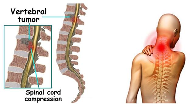 Spinal Tumor Treatment in Guntur, Andhra Pradesh
