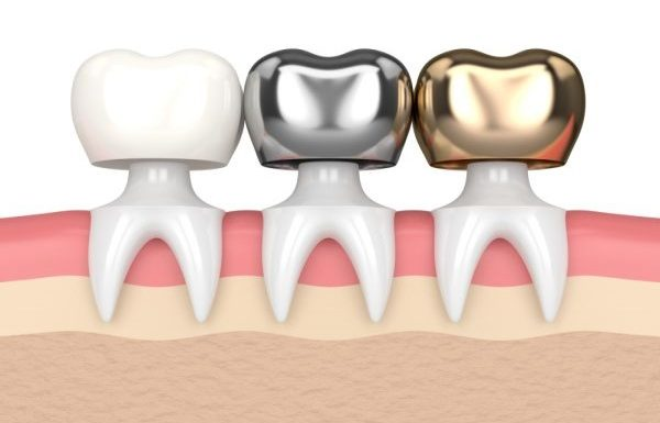 Personalized, Comprehensive Dental Restoration Services In New York