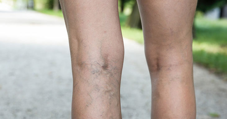 Foot and Ankle Varicose Veins Treatment at Advanced Foot, Ankle, and Wounds Specialists, PA