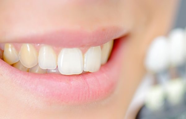 Home remedies for stained teeth